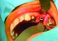 Chirurgie à livre ouvert